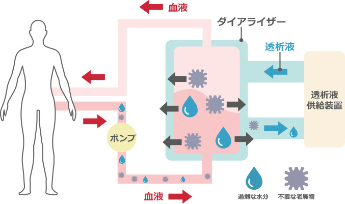 血液 透析 と は