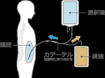 腹膜透析│吉祥寺あさひ病院│善仁会グループ