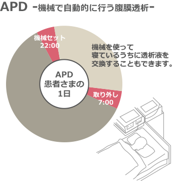 APD -機械で自動的に行う腹膜透析-